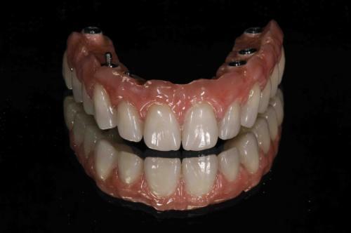 Implantaten 1