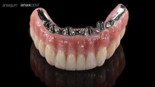 Implantaten 2